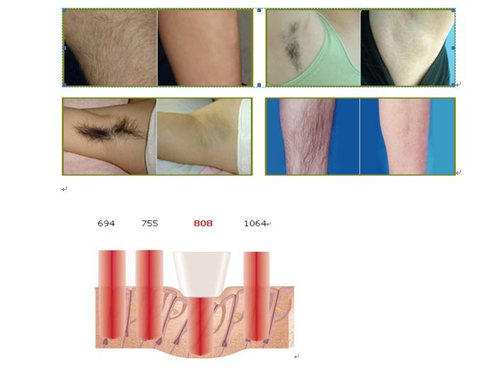 810nm Diode Laser Hair Removal System 2014 Ce Approved Diode Hair Remover Laser