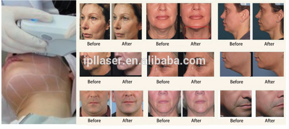 Skin Rejuvenation Machine Face Wrinkle Removal Machine Jowl lifting